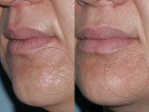 Aknenarben links nach 2 Behandlungen