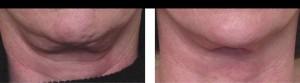 Kinn Hals nach 6 Behandlungen